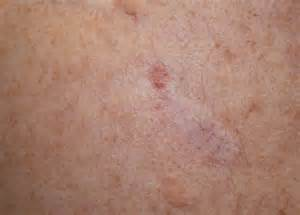 Melanoma Nodular Skin Cancer