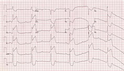 av block  degree complete heart block