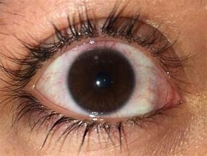 Got A Corneal Ulcer  Ud83d Ude29 I U0026 39 Ll Definitely Never Sleep In My