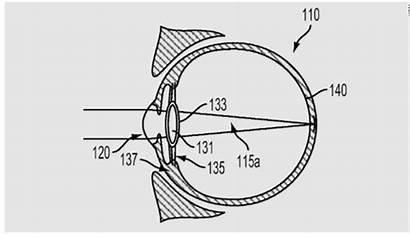Google Lenses Eyeballs Cyborg Inject Wants Into