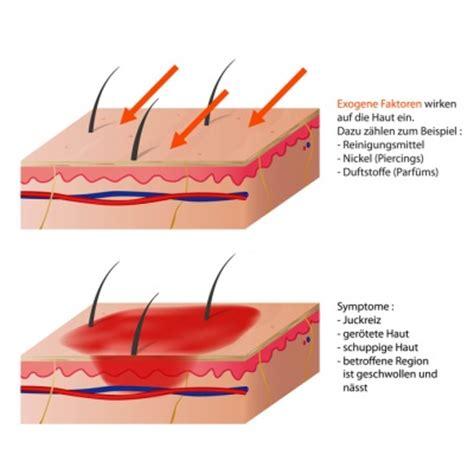 hautroetungen ursachen behandlung komplikation
