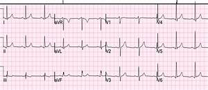 Dr  Smith U0026 39 S Ecg Blog  Precordial St Depression  What Is