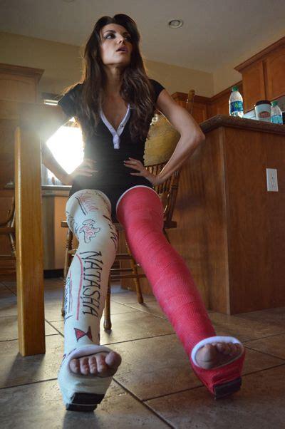 Double Long Leg Cast Dllc Leg Cast Long Leg Cast It Cast