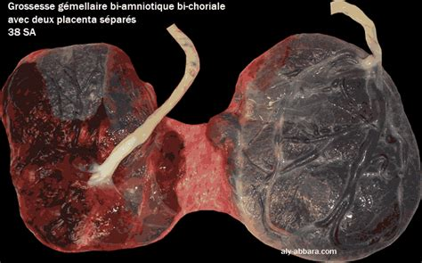 grossesse gemellaire bi amniotique bi choriale deux