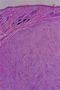 nerve sheath tumor