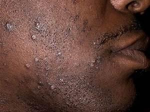 Ingrown Beard Hairs - Skin Disorders