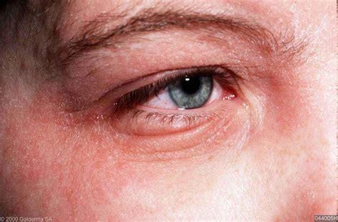 branderige ogen hooikoorts