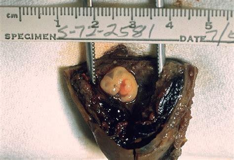 Cytotec 4 Semanas File Tubal Pregnancy Gross Pathology 01ee049 Lores Jpg