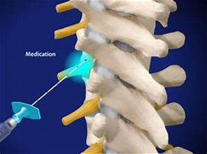 epidural steroid injection hip pain