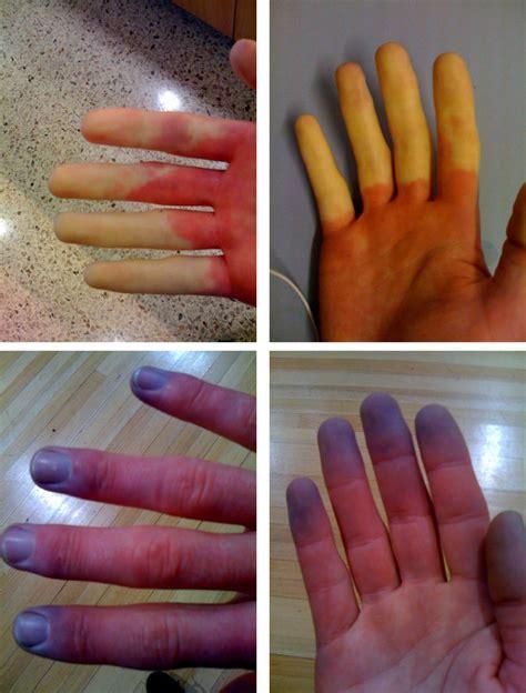 Phenomenon Raynauds Causes Symptoms Treatment