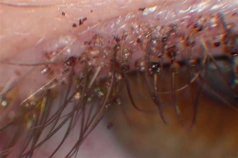 Std Images Crabs Std