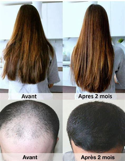 luxeol cheveux prix