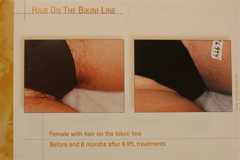 bikini  laser hair removal pictures hot pictures