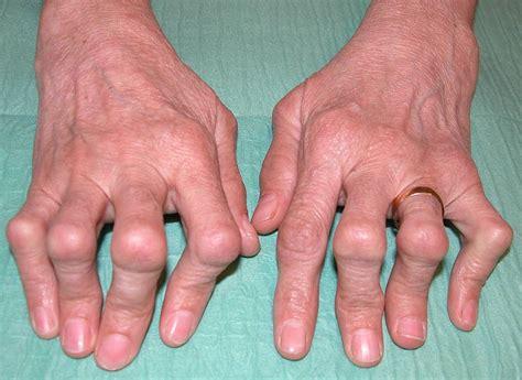 rheumatoide arthritis chronische polyarthritis rheuma