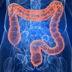 diverticoli intestinali dieta alimentare diverticoli cause sintomi cura e prevenzione