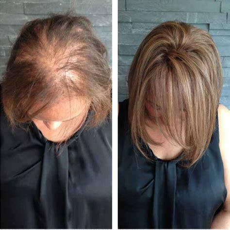 pin  anna dumong  hair loss ideas   hair