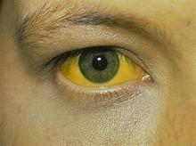 Image result for علائم بیماری های کبد