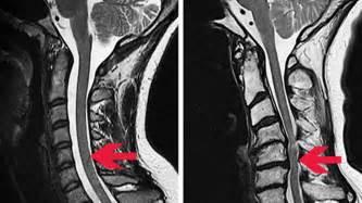 schwäche in den beinen engpass halswirbelsäule mit einer op die lähmung verhindern sendungen srf
