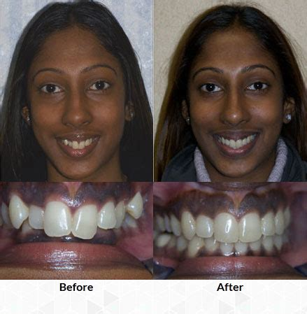 Before And After Invisalign  Kleinrock Orthodontics