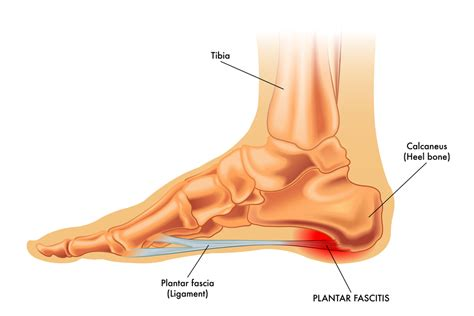 Plantar Fasciitis- Common Sports Injuries Part 2