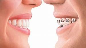 Metal Braces cost versus Invisable braces | Epsom Dentists ...