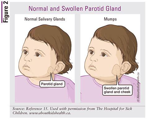 Mumps Symptoms Children