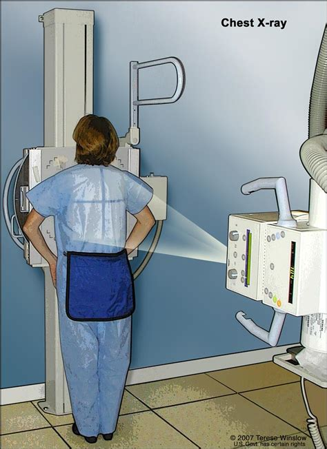 cancer patient chest ray lung rays cell machine treatment take lungs pdq standing drawing check shows breast film body version
