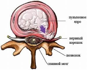 Шейный остеохондроз симптомы способы лечения