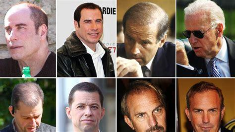 John Travolta without Hair