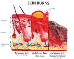 Different Type of Degree Burns