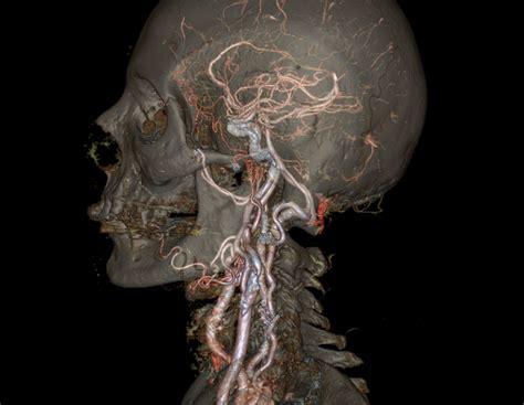 revolution ct scanner reveals detailed animated  models  organs  real time