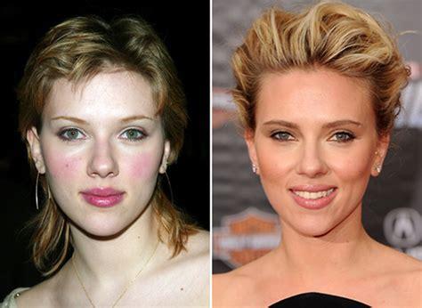 Scarlett Johansson Rinoplastica  Chirurgia Estetica Naso