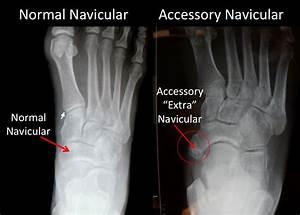 Accessory Navicular Bone | footEducation