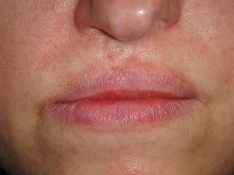 allergie mond
