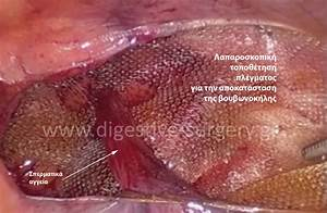 Digestive Surgery - Χειρουργική πεπτικού - Laparoscopic ...