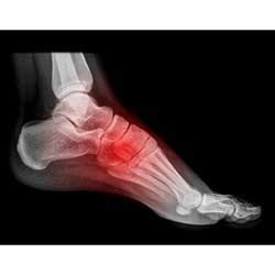 Chronic Ankle Joint Pain. Jobs With Teaching Degree Shop Business Cards. How Much Do School Psychologists Make. What Is An Hra Medical Plan 10 Honda Accord. Free Life Insurance Quotes Joomla Web Design. Multiple Sclerosis Age Of Onset. Acupuncture Business For Sale. Lawyer For Sex Offenders Storage In Laurel Md. Dairy Ashford Medical Clinic