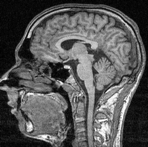 Witte en grijze stof hersenen