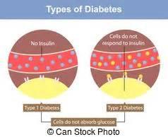 Type 2 diabetes Vector Clip Art Royalty Free. 17 Type 2 diabetes ...  Diabetes Tolazamide