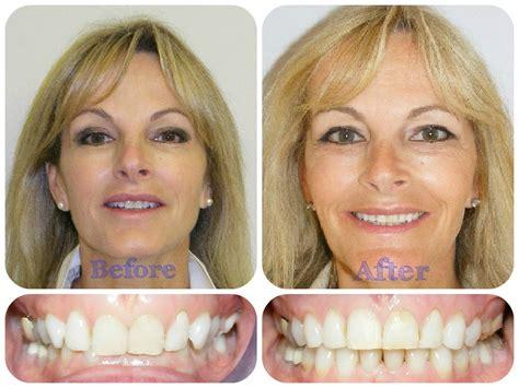 Damon Braces  Epsom Orthodontics, Surrey