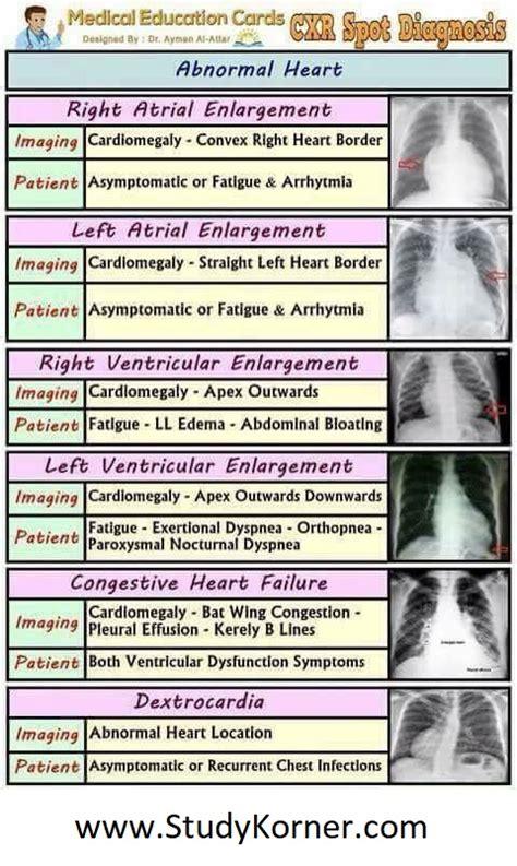 ray chest heart abnormal chart diagnosis spot nursing radiology cardiology nurse enlargement symptoms imaging failure left cardiac atrial age report