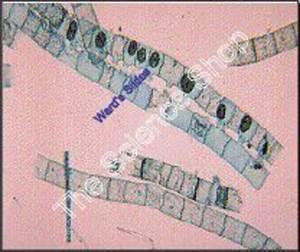 Spirogyra (wm) Scalariform conjugation - Protists ...