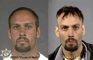 THIS IS WHAT HAPPENS WHEN YOU USE METH…. | Pout Perfection