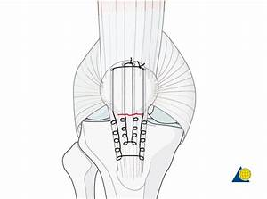 Patella - Reduction & Fixation - Suture repair - C1.3 - AO ...