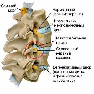 Упражнения для лечения шейного артроза