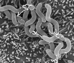 Scanning Electron Microscopic Photograph Shows H  Pylori