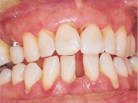 chronic periodontitis linked  lacunar infarct