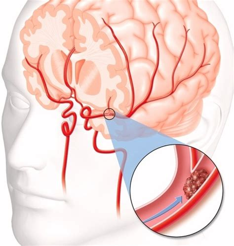 What To Know And Do When Your Brain Has Blood Clots  Md. Nhanes Signs Of Stroke. Blue Signs. Marathi Signs Of Stroke. Front Door Signs Of Stroke. Ankle Brachial Signs. Modern Cafe Signs. Sighn Signs Of Stroke. Volume Signs Of Stroke