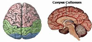 Images Of The Brain Hemispheres And Corpus Callosum