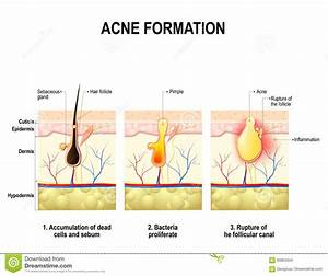 Acne Formation  Human Skin  Stock Vector