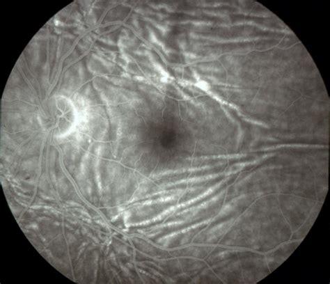 choroidal folds fa american academy  ophthalmology